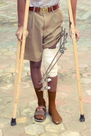 splint: photos of foot splint for treatment of injuries from broken bones Editorial