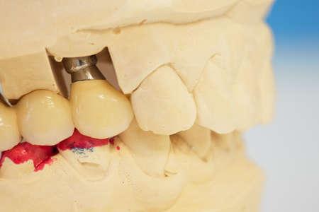 dentadura postiza: Modelo con las dentaduras de los dientes en el laboratorio dental Foto de archivo