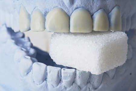 plaster mould: Model dentures of teeth with cube sugar