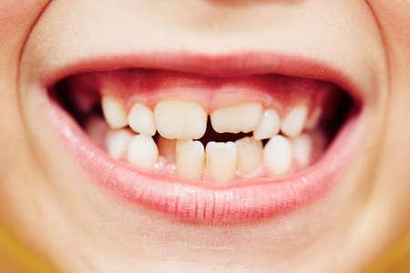 男の子の最初と 2 番目の歯