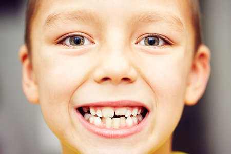 dentition: First and second teeth of the little boy