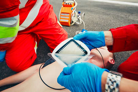 Electrodes of the defibrillator. Rescue team (doctor and a paramedic) resuscitating the man on the street. Stock Photo