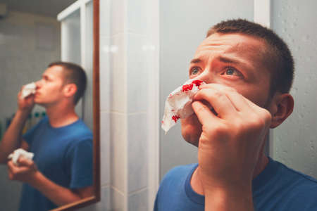 Man with nose bleed in bathroom. For themes of illness, injury or violence. Imagens - 80851681