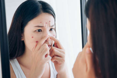 Young Asian woman squeeze acne problem face looking at mirror her without Skincare. Foto de archivo