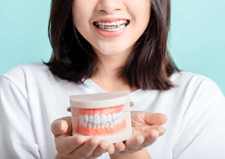 Dental braces of asian woman wearing braces with tooth sample and white teeth increase confidence for healthy on blue background isolated studio shot, Happiness teenager smiling facial expression.