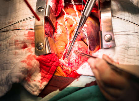 make suture at ascending aorta photo