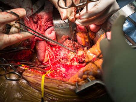 abdominal aortic aneurysm operation photo