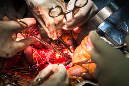 abdominal aortic aneurysm operation photo