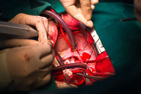 Close ventricular septal defect via tricuspid valve photo