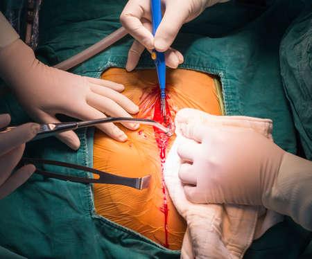 mediaan: Mediane sternotomie incisie Stockfoto
