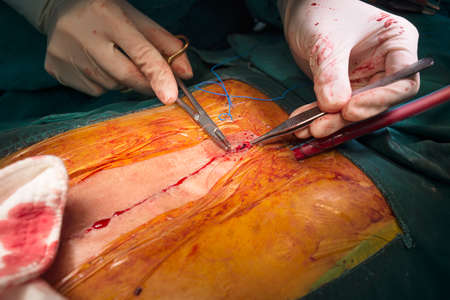 Suture close sternotomy incision