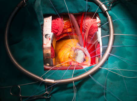 dyspnea: mitral valve repair