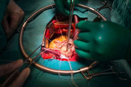 stenosis: Commissurotomy in rheumatic mitral valve stenosis