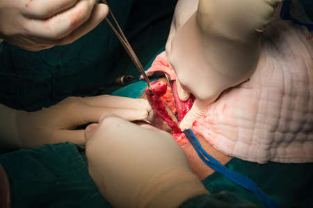 cecum: Rupture appendicitis explore laparotomy to appendectomy