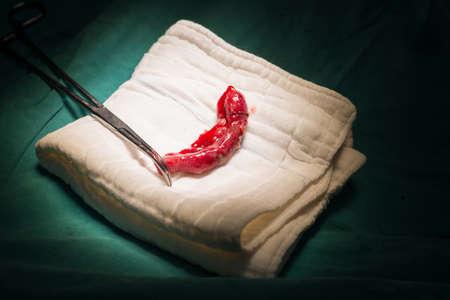 peritonitis: Appendix specimen from appendectomy