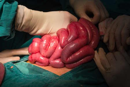 rupture: Rupture appendicitis explore laparotomy to appendectomy