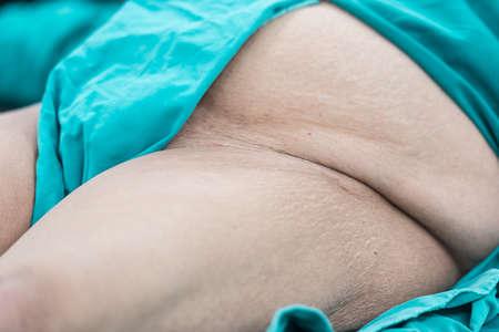medical ventilator: Prepare groin area for operation