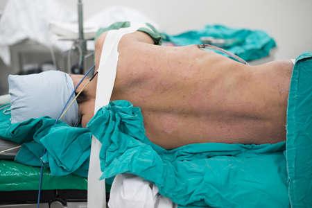Scrub verpleegkundige scrub patiënt voor te bereiden op de borst operatie