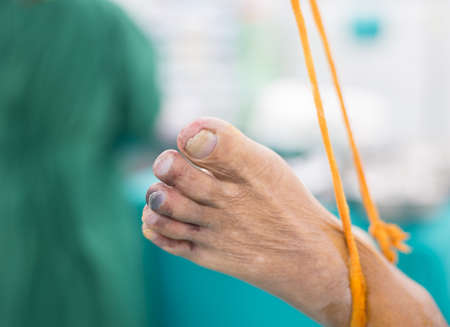 transient: Blue toe syndrome is a situation of atherothrombotic microembolism, causing transient focal ischaemia, occasionally with minor apparent tissue loss, but without diffuse forefoot ischemia
