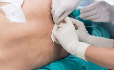 paraplegia: fix epidural catheter