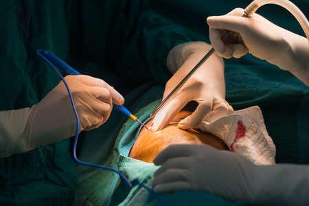 hemorragias: uso cirujano cauterizar para detener el sangrado Foto de archivo