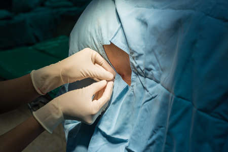 paraplegia: anesthesiologist do spinal block for patient Stock Photo