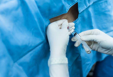 anesthetic: spinal nerve block