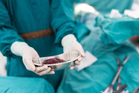 specimen: surgeon show lung specimen after surgery Stock Photo