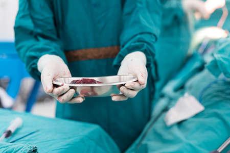 specimen: show specimen after surgery