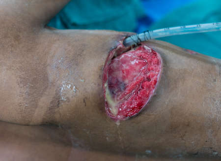 pus: thoracotomy wound