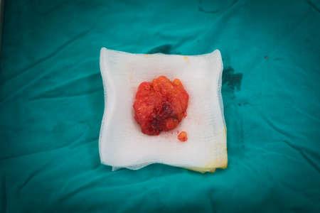 biopsia: lipoma Foto de archivo