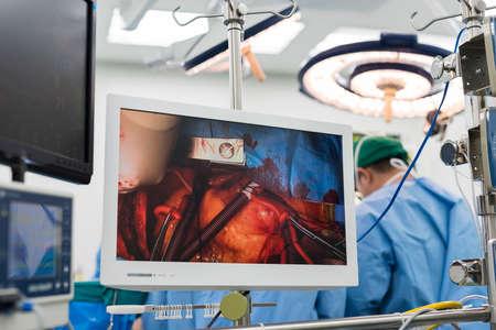 equipos medicos: monitor m�dico