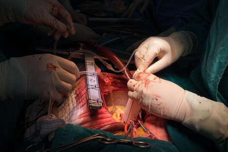heart suite: surgery Stock Photo