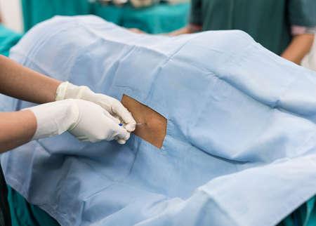 paraplegia: spinal nerve block