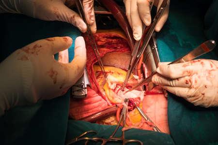 open heart surgery Stock Photo