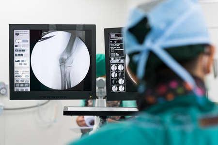 endovasculaire interventie Stockfoto
