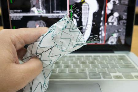 endovascular stent graft Stock Photo