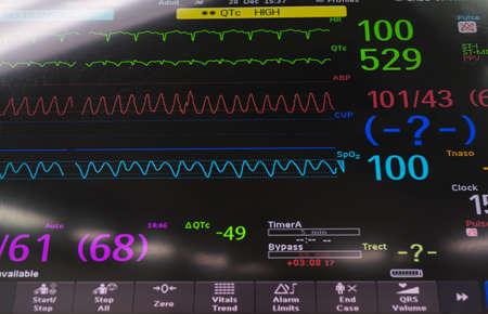 mechanical ventilation: medical monitor