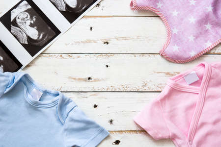 romper: Pink and blue baby romper and ultrasound on white wooden background.Copyspace