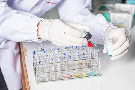 Close-up of test tubes arranged on a tray in medical laboratory. Medical healthcare analysis in a hospital. science, chemistry, technology, biology and people concept 版權商用圖片