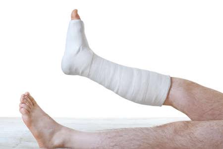 pierna rota: Yeso en la pierna en el fondo blanco Foto de archivo