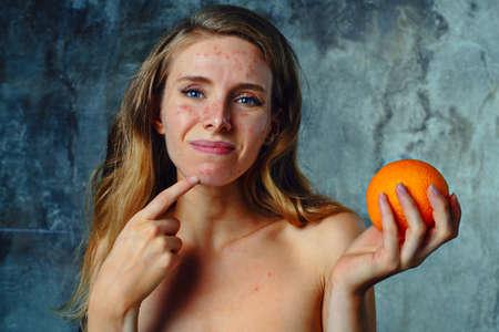 comida: Mujer joven tiene alergia en naranja. La cara tiene un montón de acné y ella es muy infeliz.