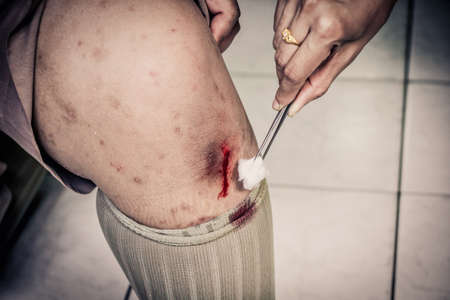 scraped: Child with scraped knee