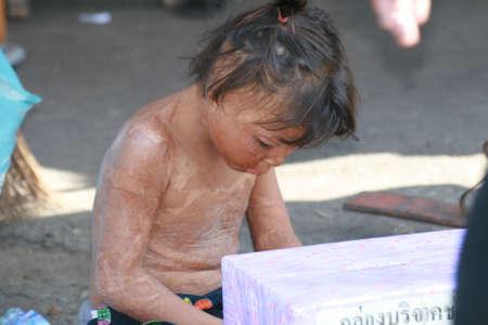 BANGKOK, THAILAND - NOVEMBER 29: Disabled boy sits and begs for money in Chatuchak market on November 29, 2008 in Bangkok.