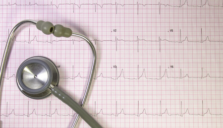 Electrocardiogram in pink grid with stethoscope photo