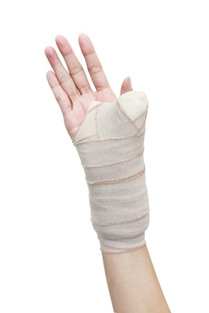 isolated broken woman arm in a cast photo