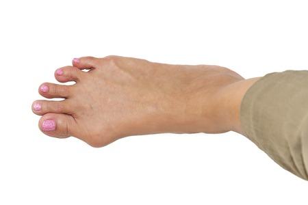 isolated background of  foot deformity called bunion deformity or hallux valgus