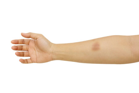 isolated bruised arm  in white background photo