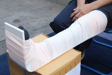 splint: man leg with a splint