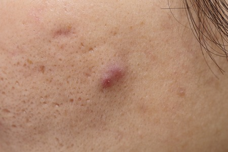 sores: close up  acne on woman face